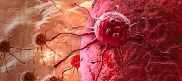 Erken Evre Mesane Kanserinde İleri Aşamayı Önleyen Yöntem: Transüretral Rezeksiyon