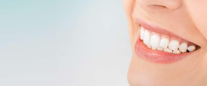 Diş Beyazlatma İle İlgili Bilinmesi Gerekenler