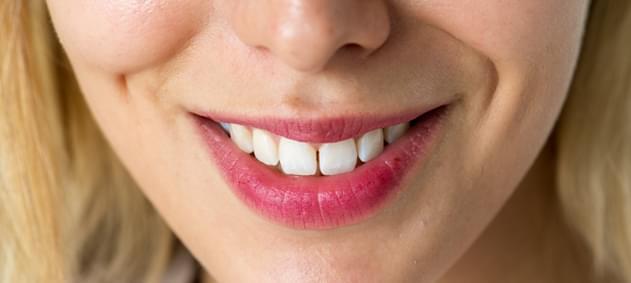Dişlerinizin Görüntüsünden Memnun Değilseniz Çözüm Ortodontik Tedavi