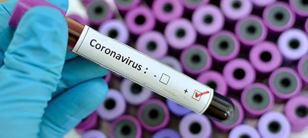 Yeni Tip Coronavirüsün Tedavisi Var Mı?