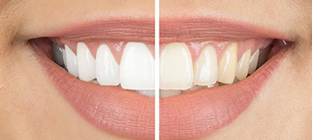 Beyaz, Daha da Beyaz Dişler!