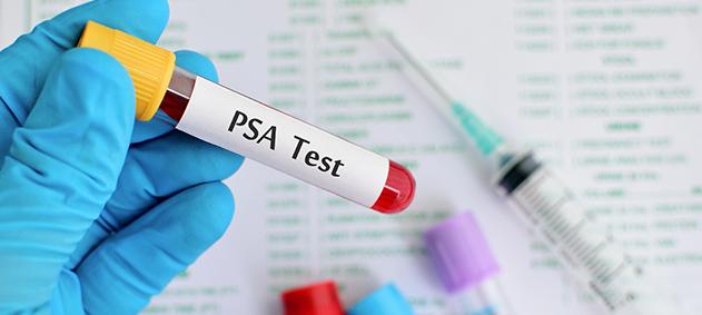 Prostat Sağlığının Önemli Göstergesi: PSA