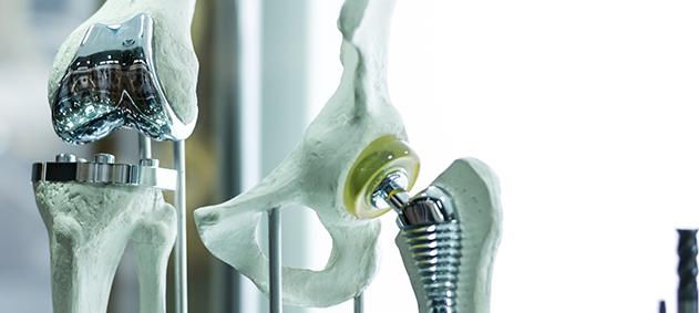 Diz Kireçlenmesinde Protez Uygulamaları