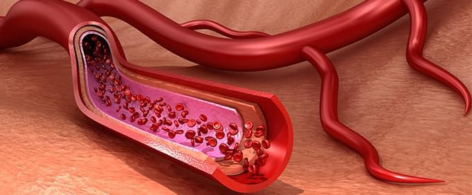 Aort Anevrizmaları