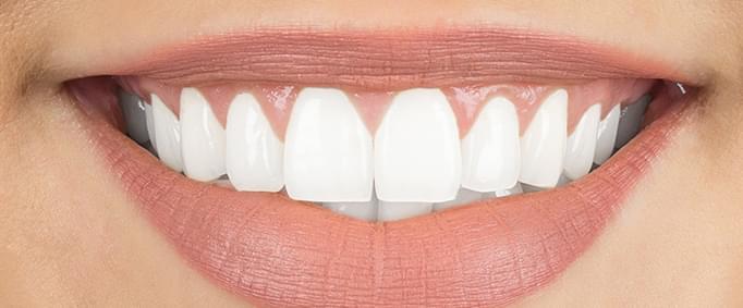Doğal ve Güzel Bir Gülümsemeye Sahip Olmak İçin Estetik Çözümler - II