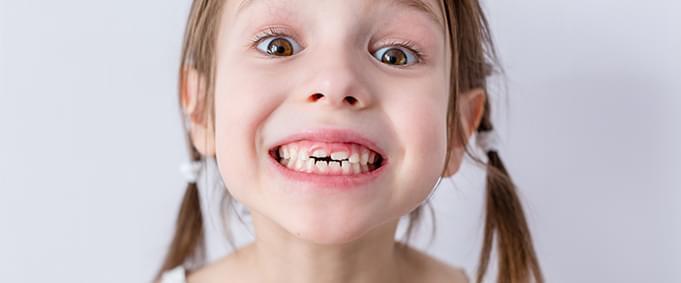 Süt Dişlerine Dikkat!
